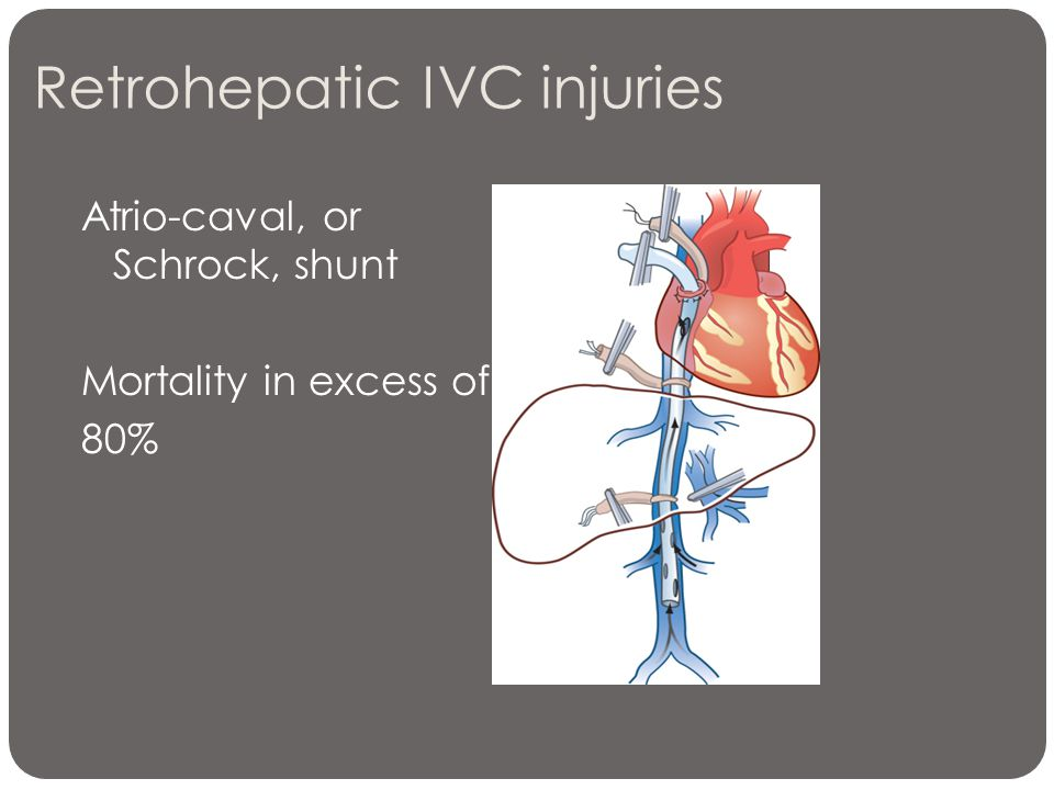 Retrohepatic IVC injuries