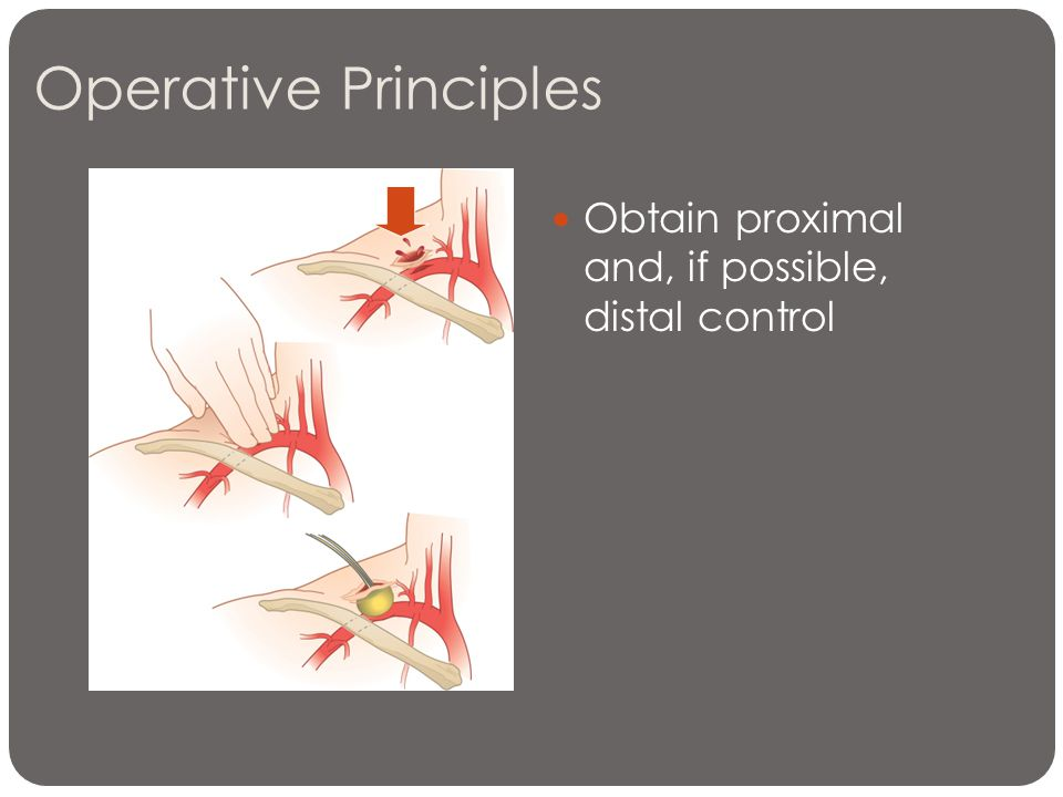 Operative Principles Obtain proximal and, if possible, distal control