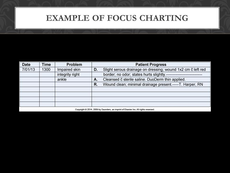 Example of Focus Charting