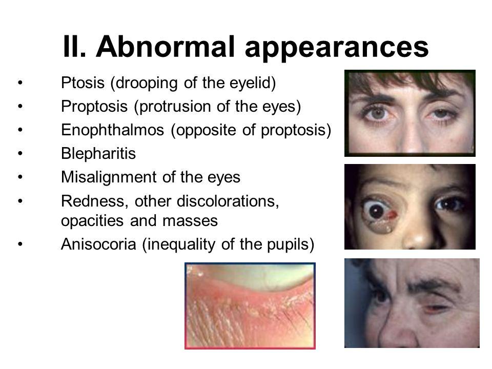 II. Abnormal appearances