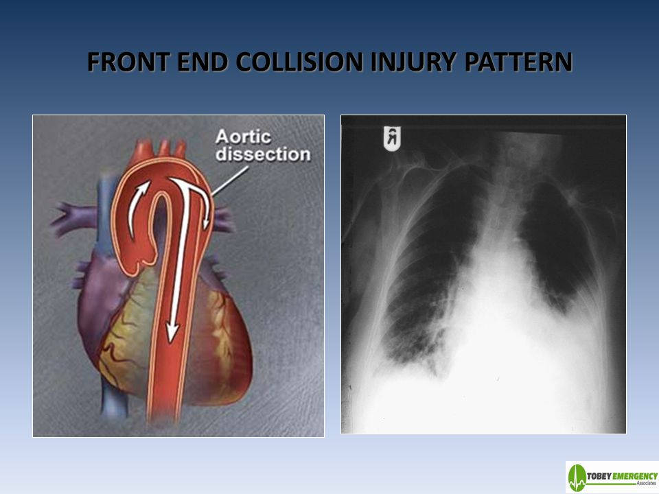 FRONT END COLLISION INJURY PATTERN