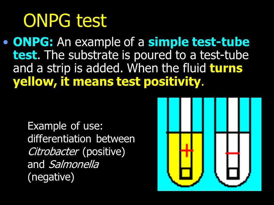 ONPG test