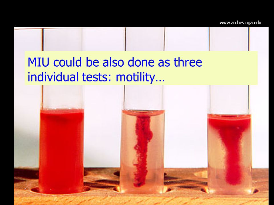 MIU could be also done as three individual tests: motility…