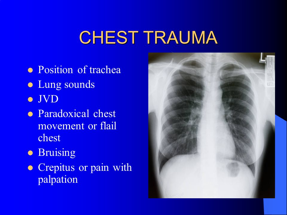CHEST TRAUMA Position of trachea Lung sounds JVD