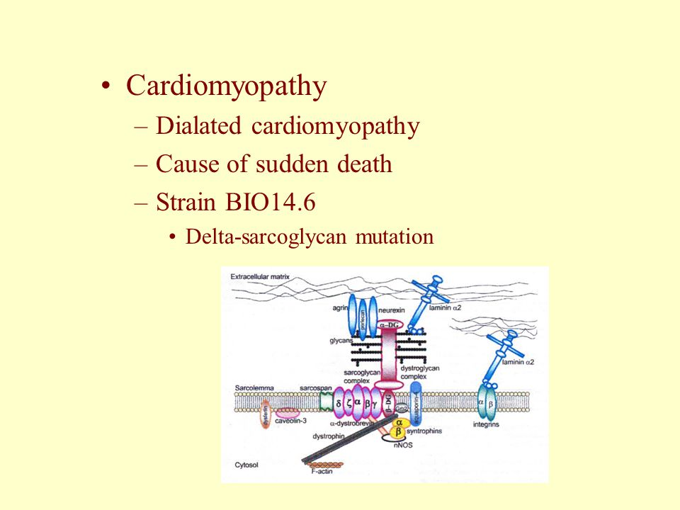 Cardiomyopathy Dialated cardiomyopathy Cause of sudden death