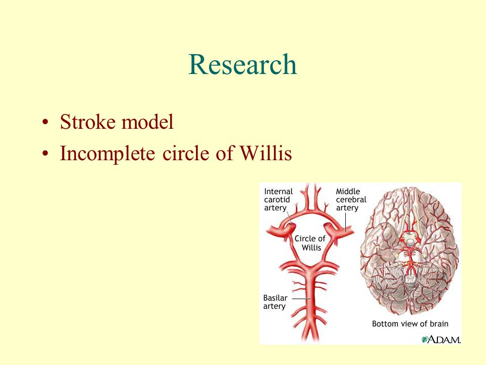 Research Stroke model Incomplete circle of Willis