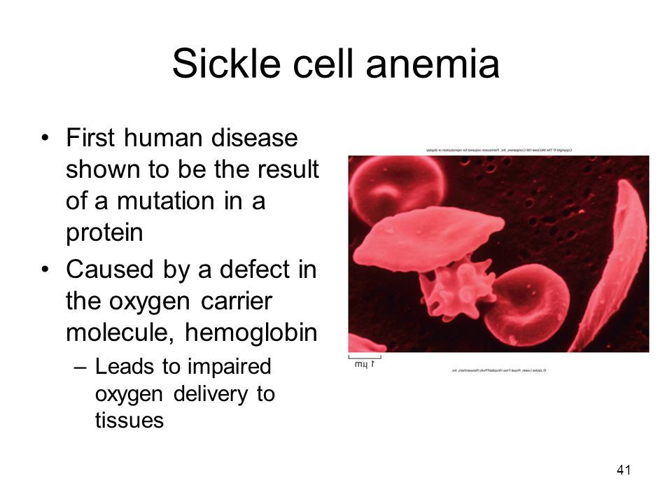 Sickle cell anemia First human disease shown to be the result of a mutation in a protein.