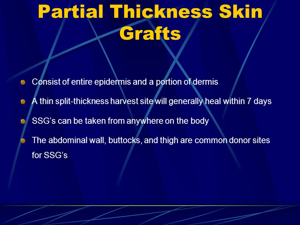 Partial Thickness Skin Grafts