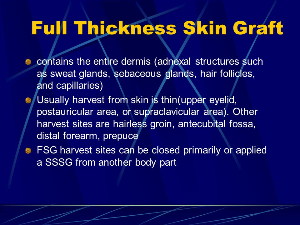 Full Thickness Skin Graft