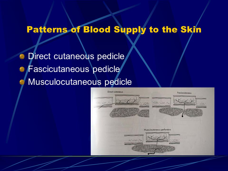 Patterns of Blood Supply to the Skin
