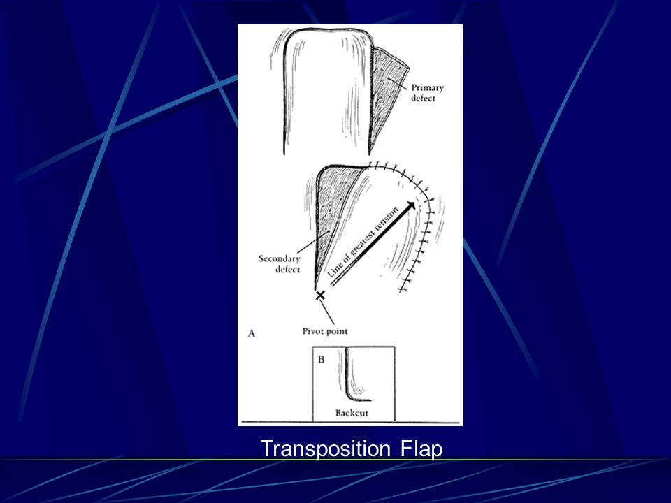 Transposition Flap