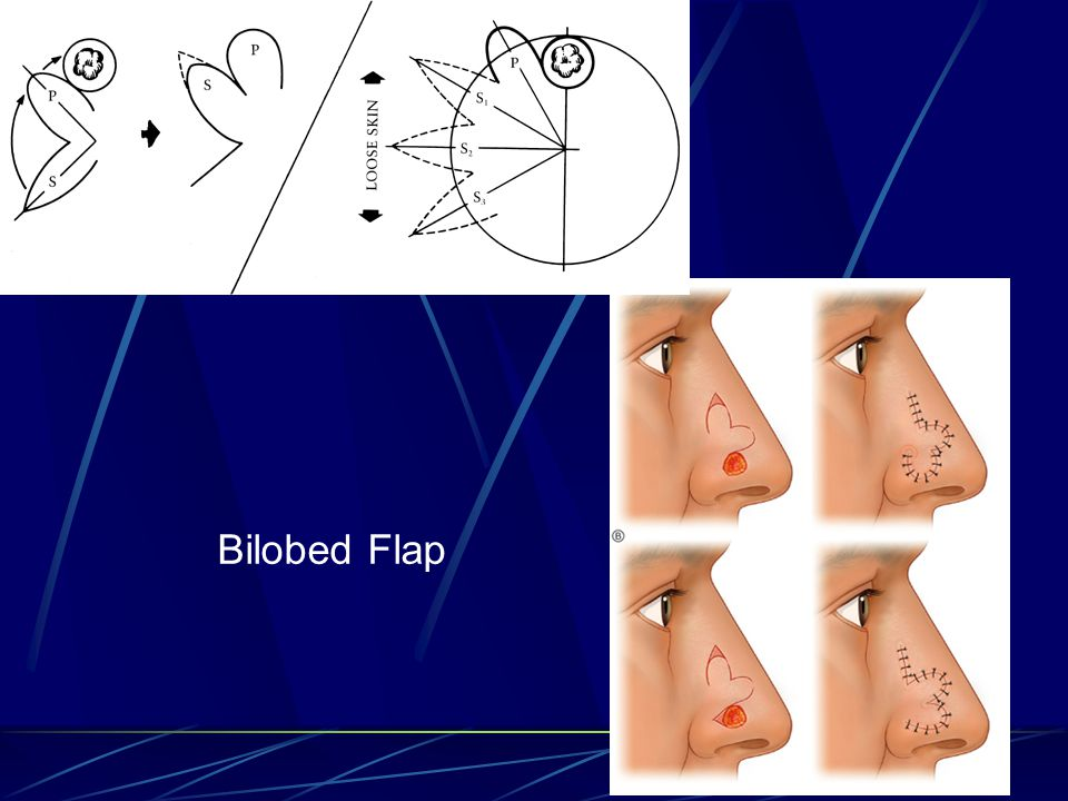 Bilobed Flap
