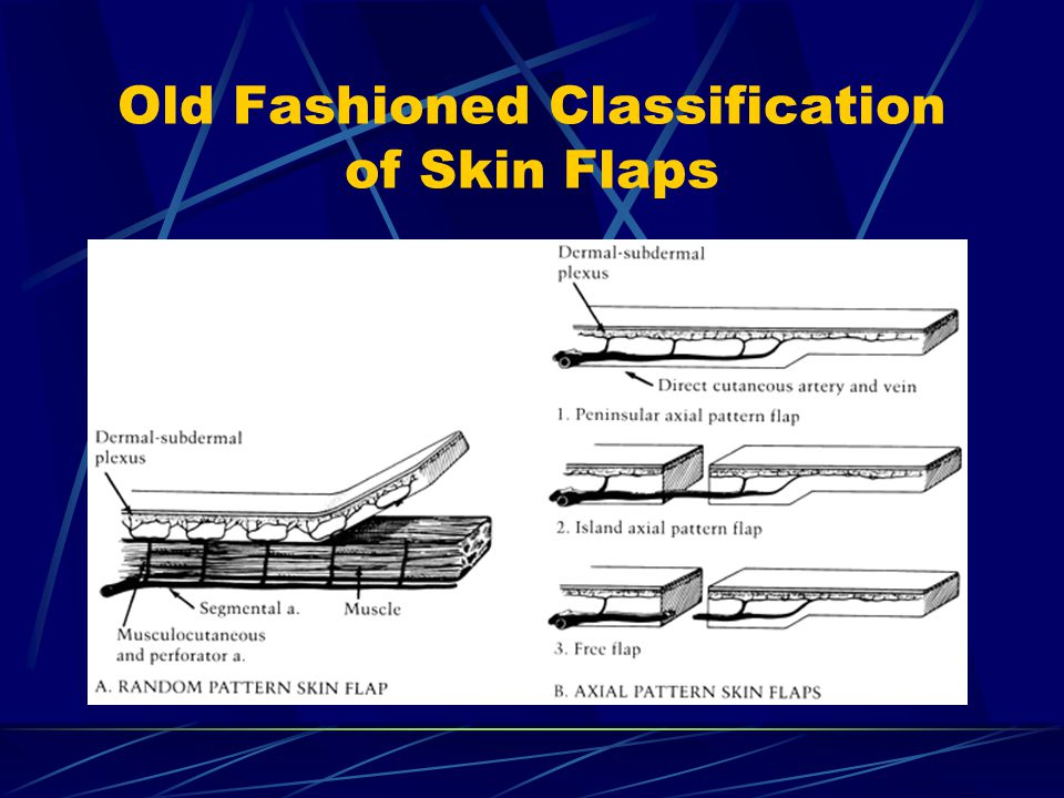 Old Fashioned Classification of Skin Flaps