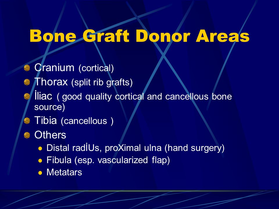 Bone Graft Donor Areas Cranium (cortical) Thorax (split rib grafts)