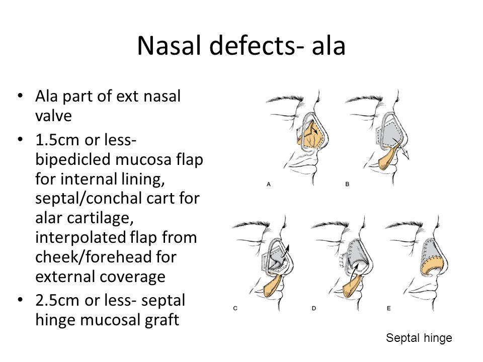 Nasal defects- ala Ala part of ext nasal valve