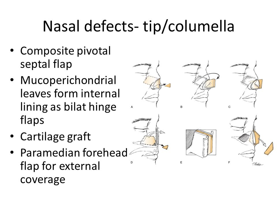 Nasal defects- tip/columella