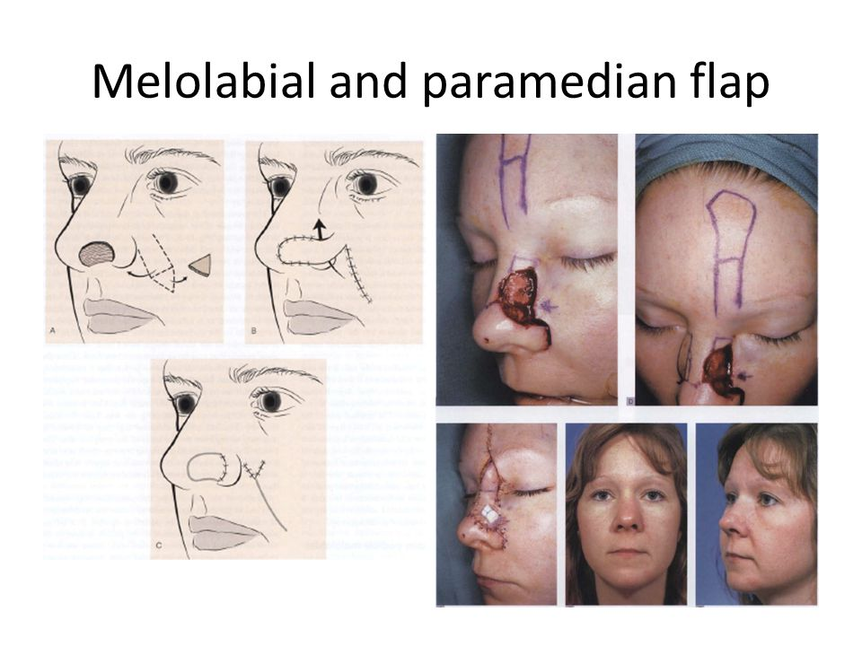 Melolabial and paramedian flap