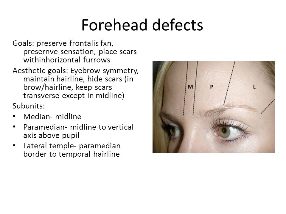 Forehead defects Goals: preserve frontalis fxn, presernve sensation, place scars withinhorizontal furrows.