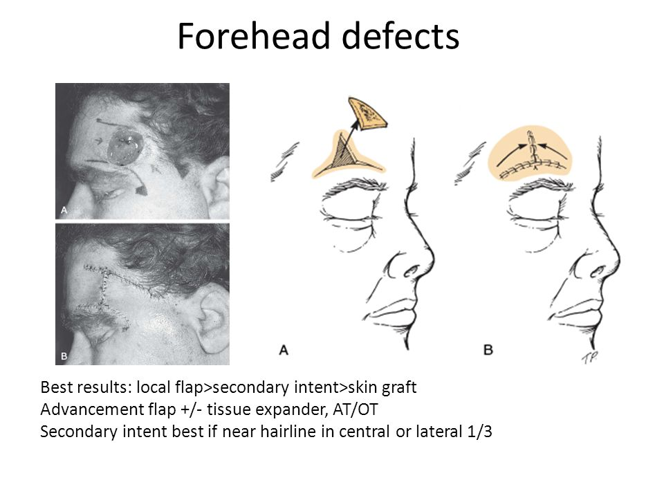 Forehead defects
