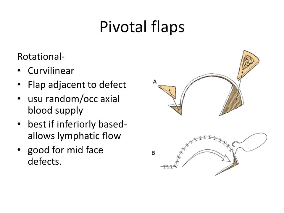 Pivotal flaps Rotational- Curvilinear Flap adjacent to defect