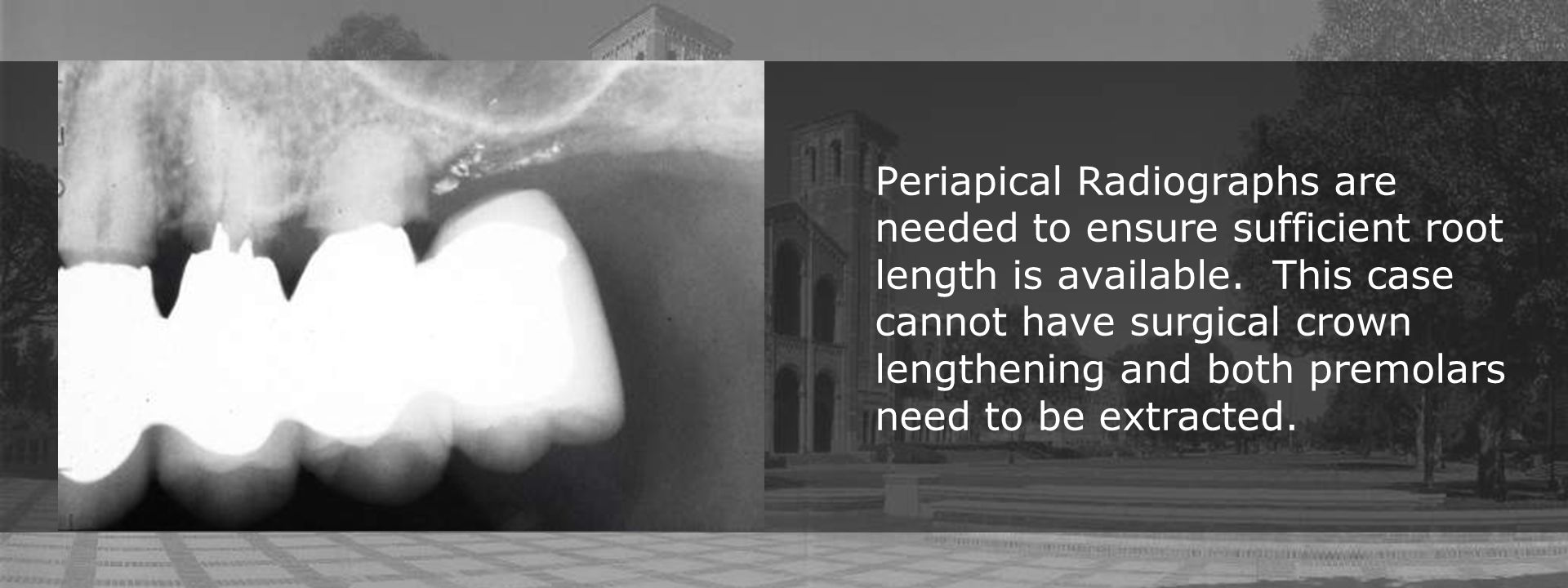 Periapical Radiographs are needed to ensure sufficient root length is available.