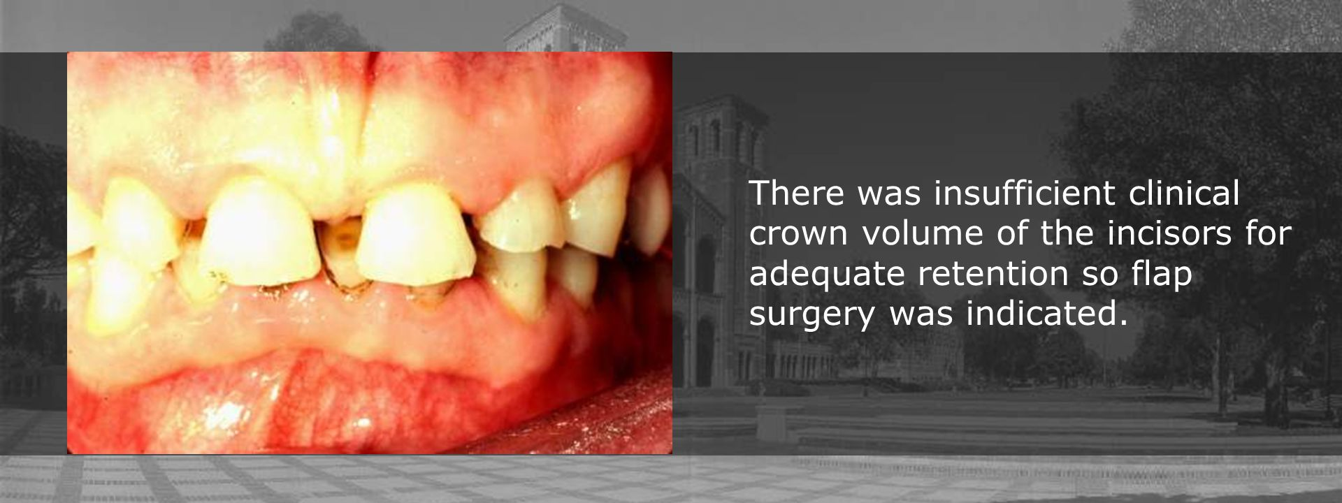 There was insufficient clinical crown volume of the incisors for adequate retention so flap surgery was indicated.