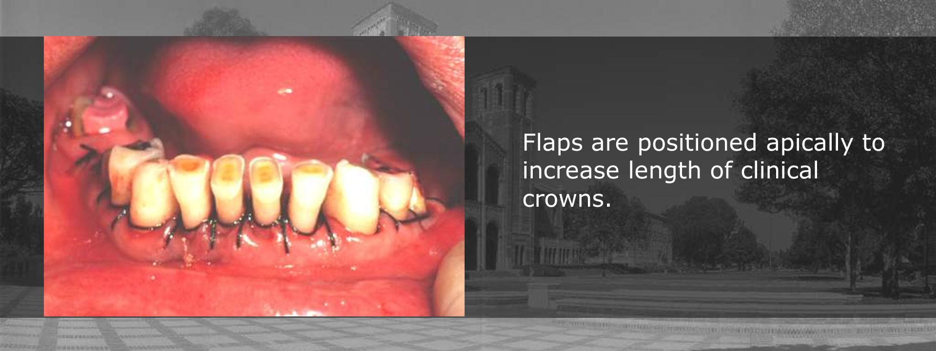 Flaps are positioned apically to increase length of clinical crowns.