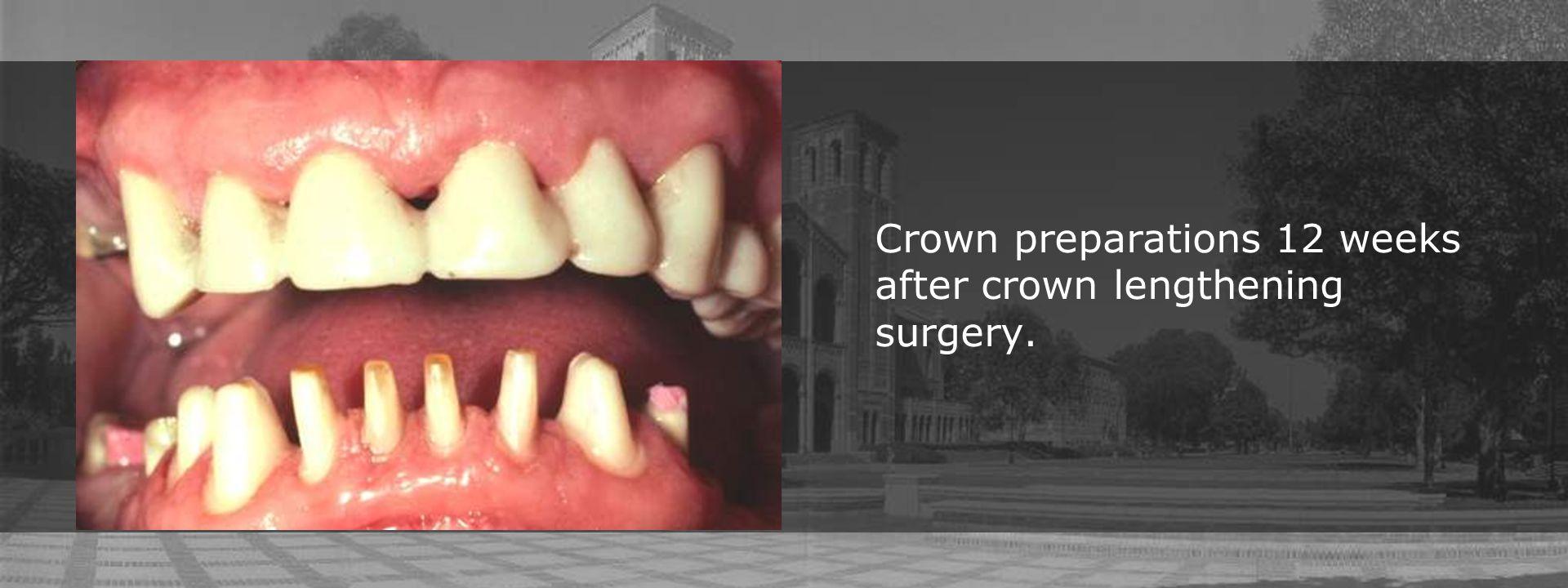 Crown preparations 12 weeks after crown lengthening surgery.