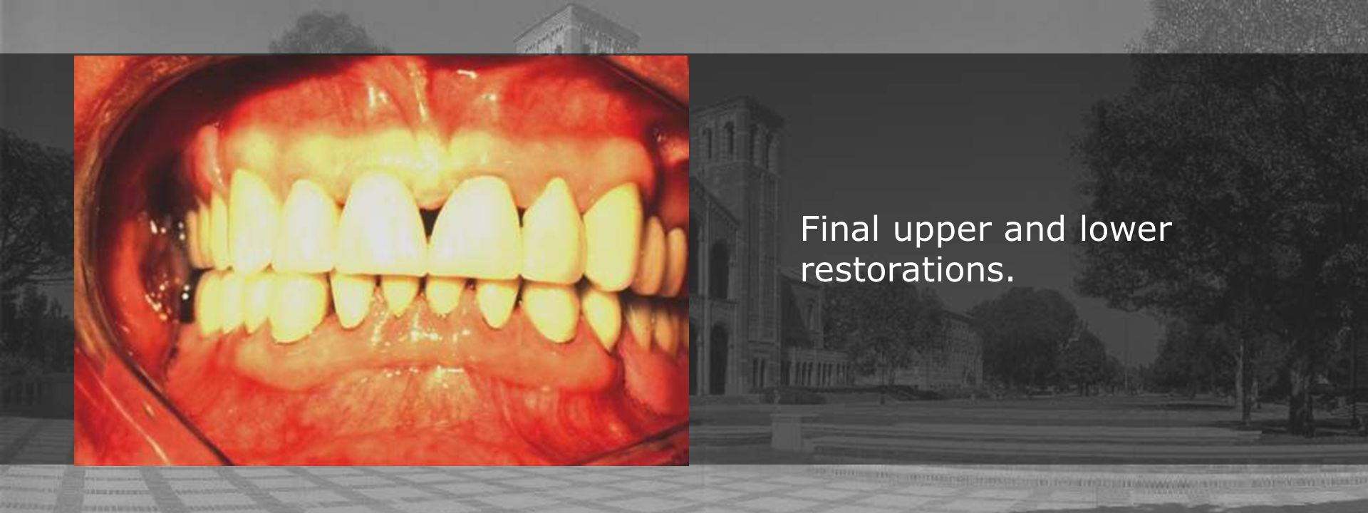 Final upper and lower restorations.