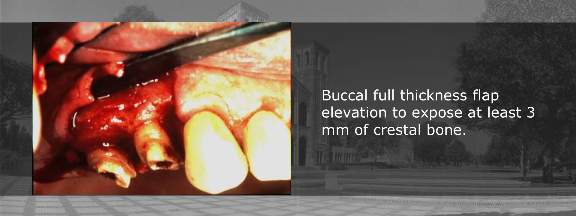Buccal full thickness flap elevation to expose at least 3 mm of crestal bone.