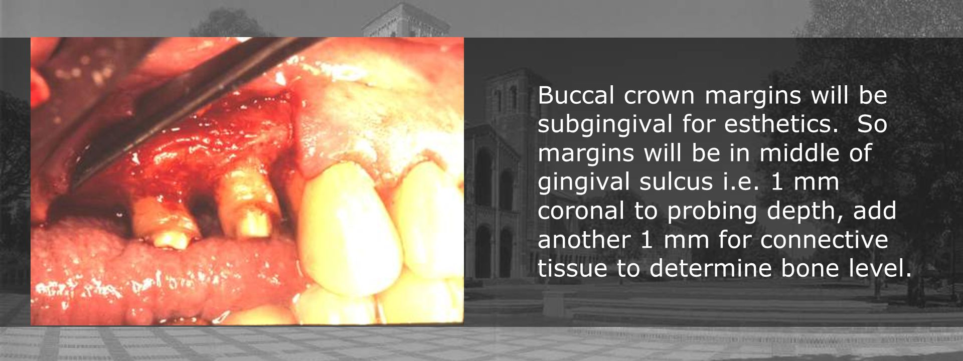 Buccal crown margins will be subgingival for esthetics