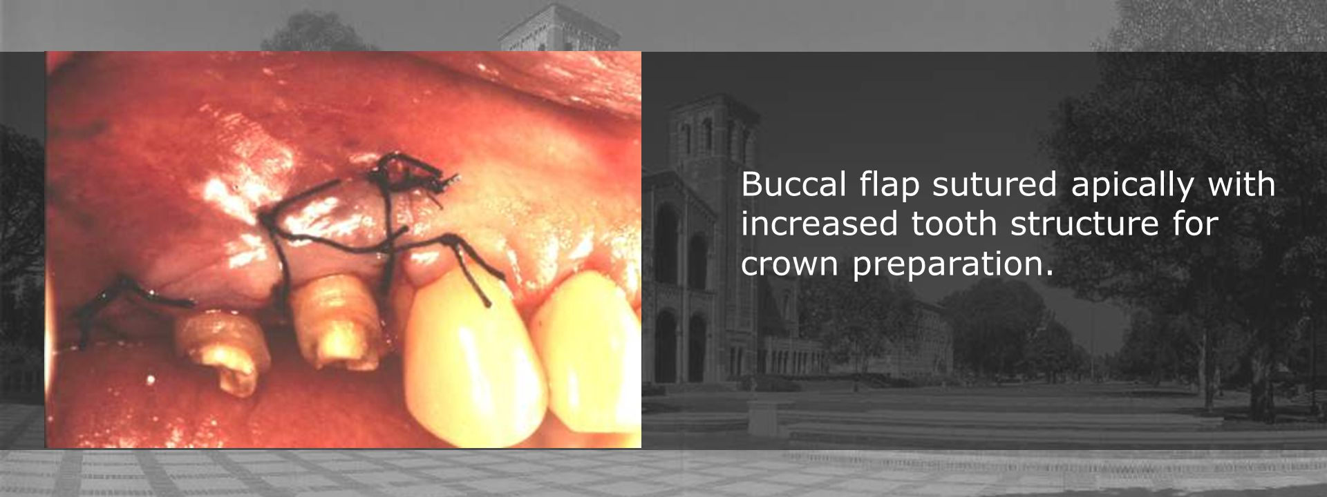 Buccal flap sutured apically with increased tooth structure for crown preparation.