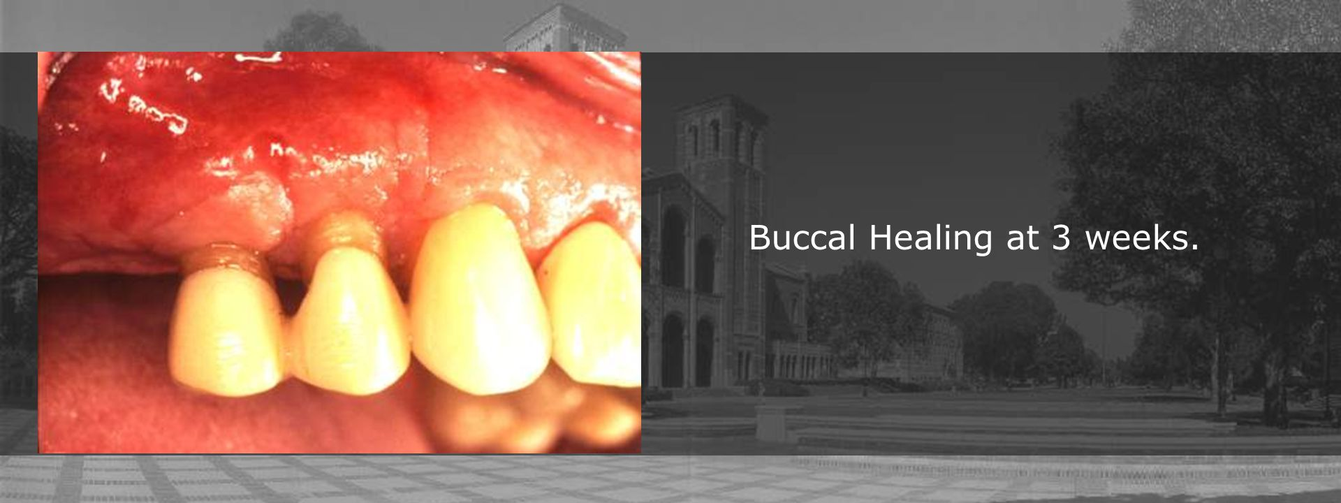 Buccal Healing at 3 weeks.