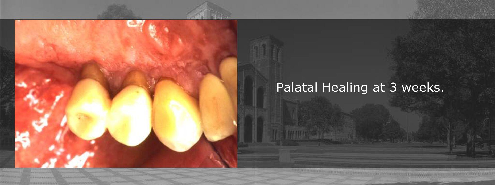 Palatal Healing at 3 weeks.