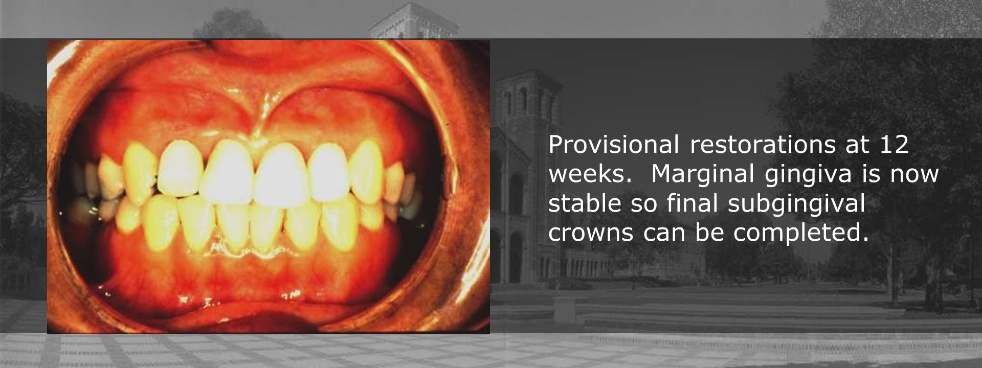 Provisional restorations at 12 weeks