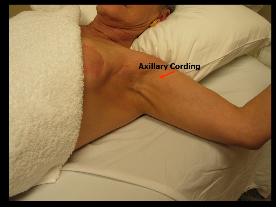 Axillary Cording Reviewed published breast cancer guidelines & literature identified via MEDLINE(R)