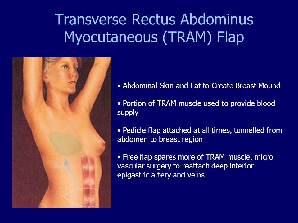 Transverse Rectus Abdominus Myocutaneous (TRAM) Flap