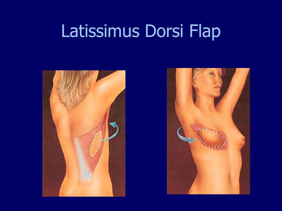 Latissimus Dorsi Flap