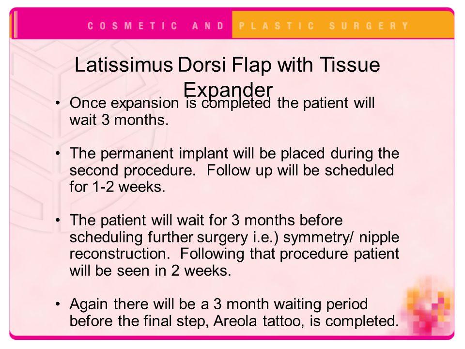 Latissimus Dorsi Flap with Tissue Expander