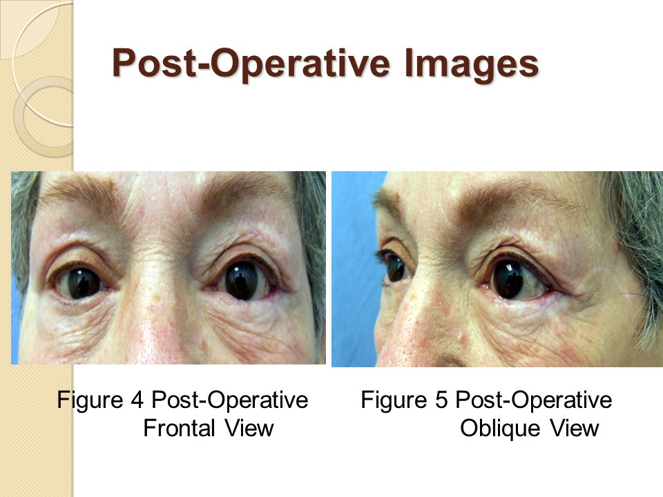 Post-Operative Images