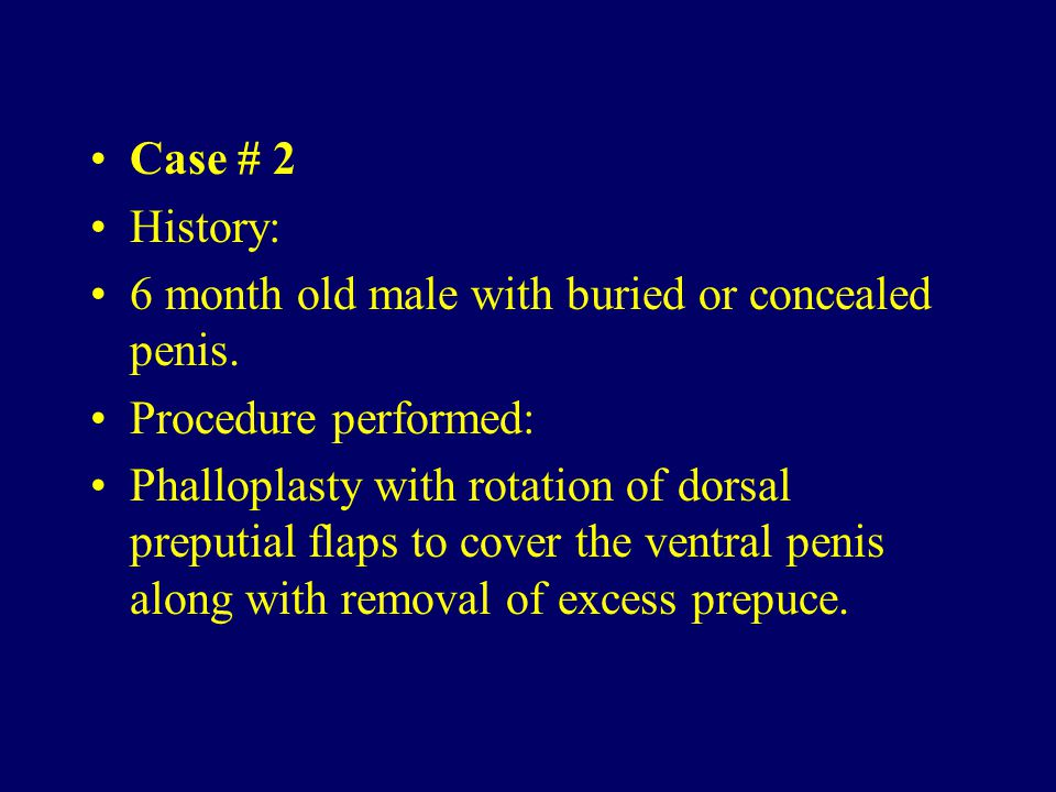 Case # 2 History: 6 month old male with buried or concealed penis. Procedure performed: