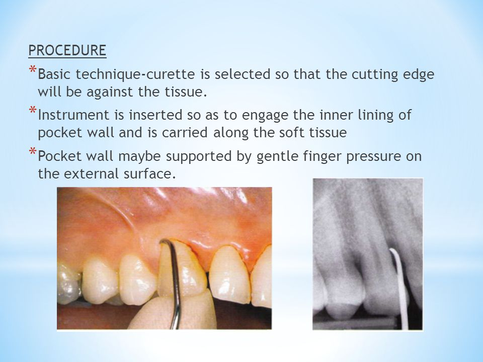 PROCEDURE Basic technique-curette is selected so that the cutting edge will be against the tissue.
