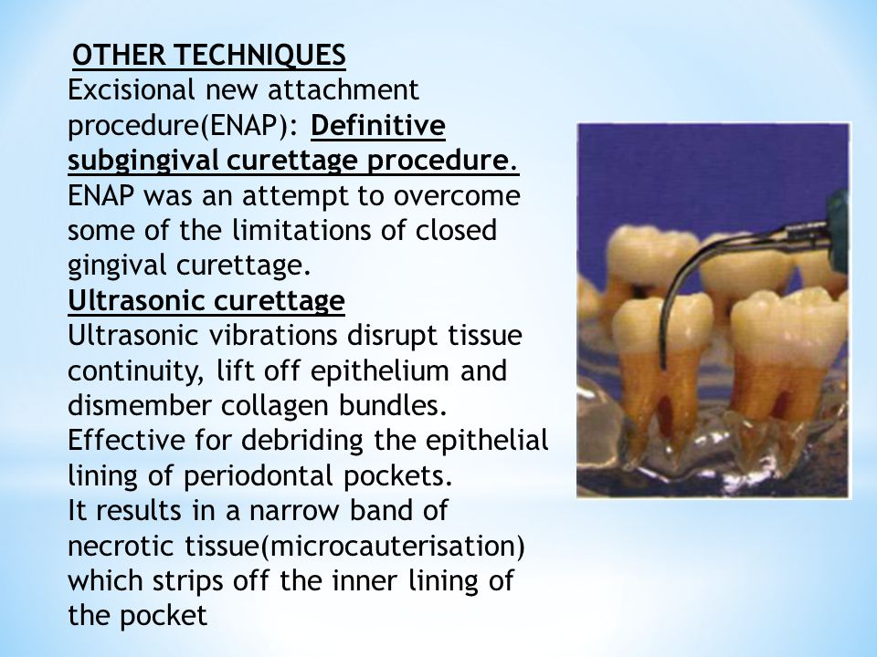 OTHER TECHNIQUES Excisional new attachment procedure(ENAP): Definitive subgingival curettage procedure.