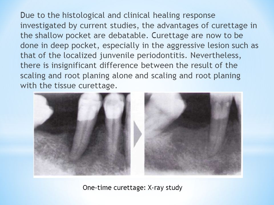 Due to the histological and clinical healing response investigated by current studies, the advantages of curettage in the shallow pocket are debatable. Curettage are now to be done in deep pocket, especially in the aggressive lesion such as that of the localized junvenile periodontitis. Nevertheless, there is insignificant difference between the result of the scaling and root planing alone and scaling and root planing with the tissue curettage.