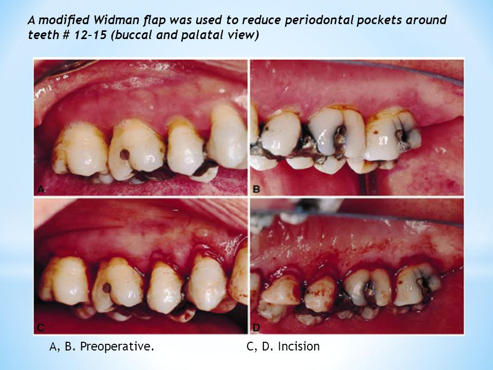 A modified Widman flap was used to reduce periodontal pockets around teeth # 12–15 (buccal and palatal view)