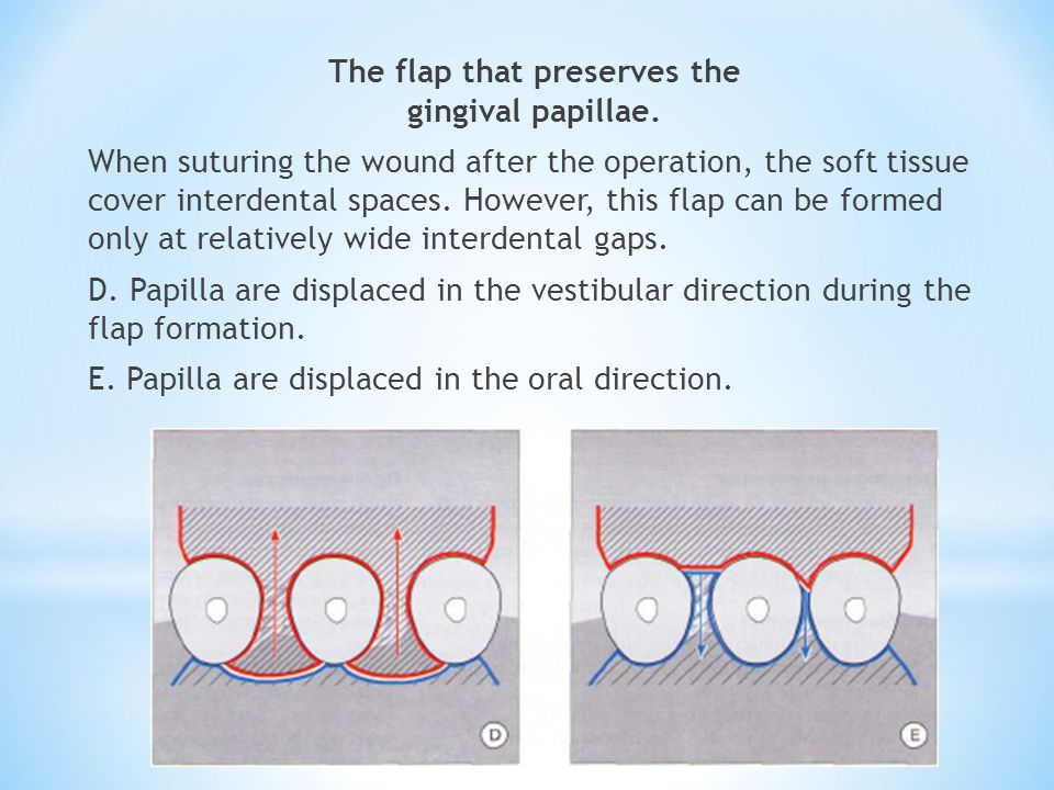 The flap that preserves the gingival papillae