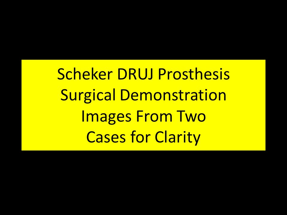 Scheker DRUJ Prosthesis Surgical Demonstration Images From Two Cases for Clarity