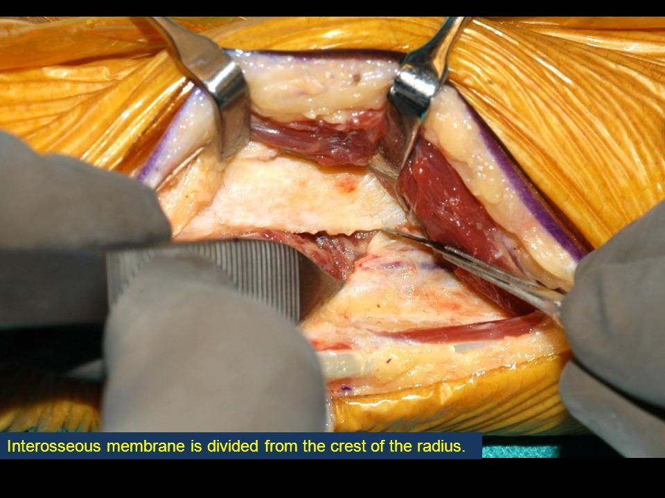 Interosseous membrane is divided from the crest of the radius.