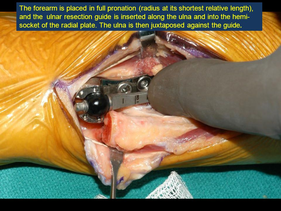 The forearm is placed in full pronation (radius at its shortest relative length), and the ulnar resection guide is inserted along the ulna and into the hemi-socket of the radial plate.