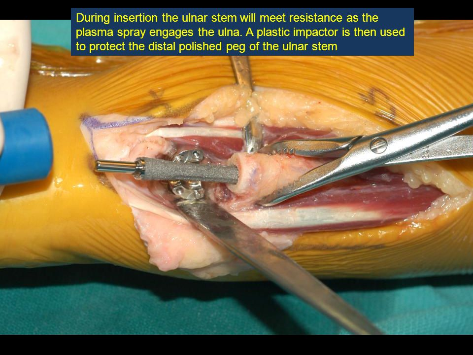 During insertion the ulnar stem will meet resistance as the plasma spray engages the ulna.